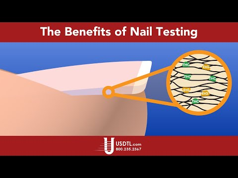The Benefits of Nail Testing