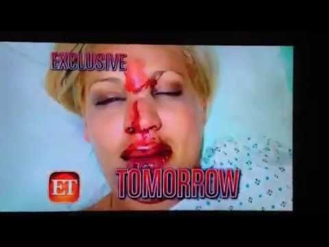 Lisa D'Amato- Entertainment Tonight- Accident
