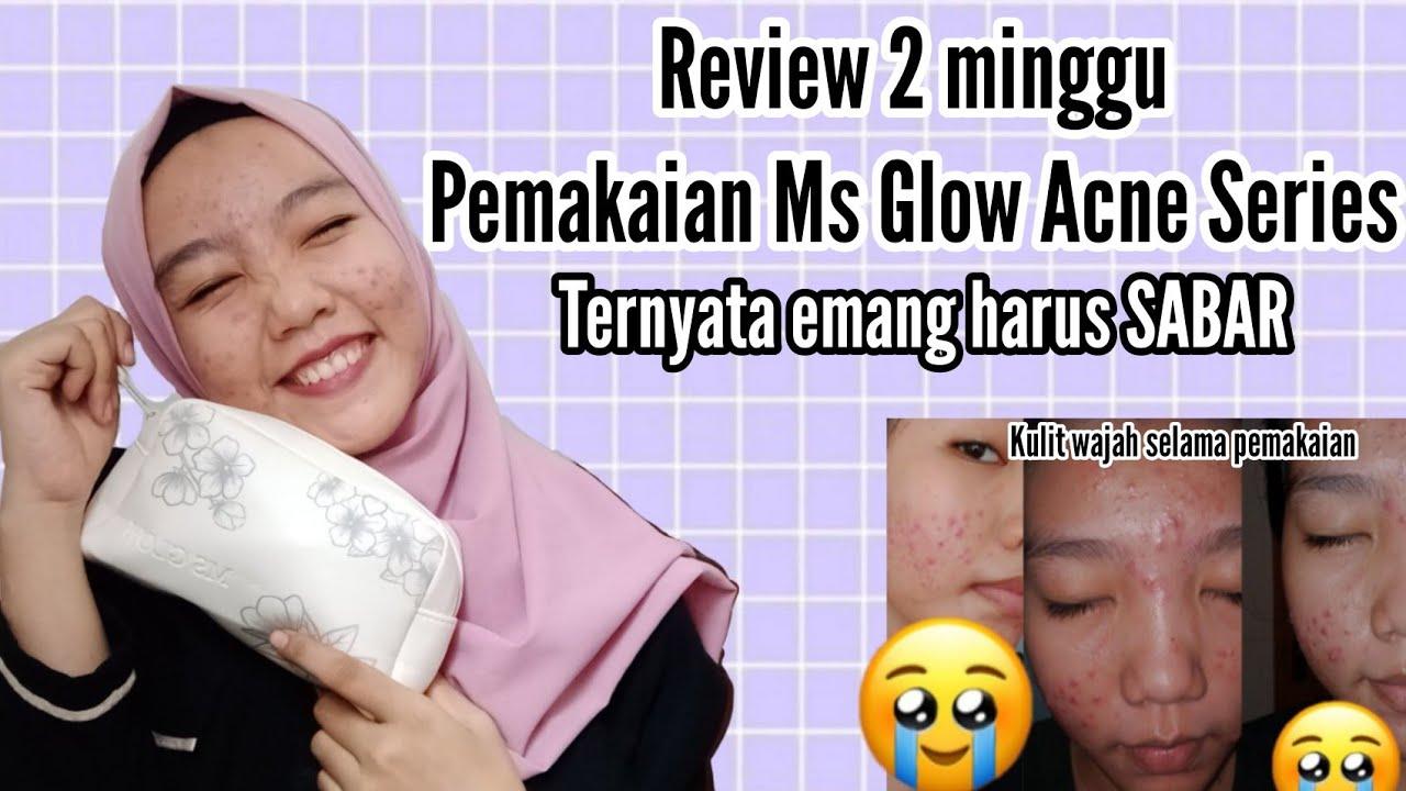 2 MINGGU PEMAKAIAN MS GLOW ACNE SERIES | REVIEW MS GLOW ...