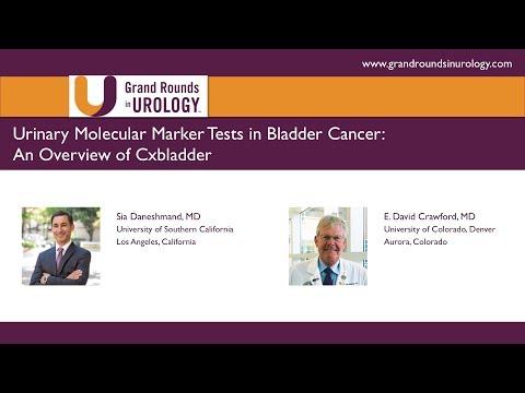 Urinary Molecular Marker Tests In Bladder Cancer: An Overview Of Cxbladder