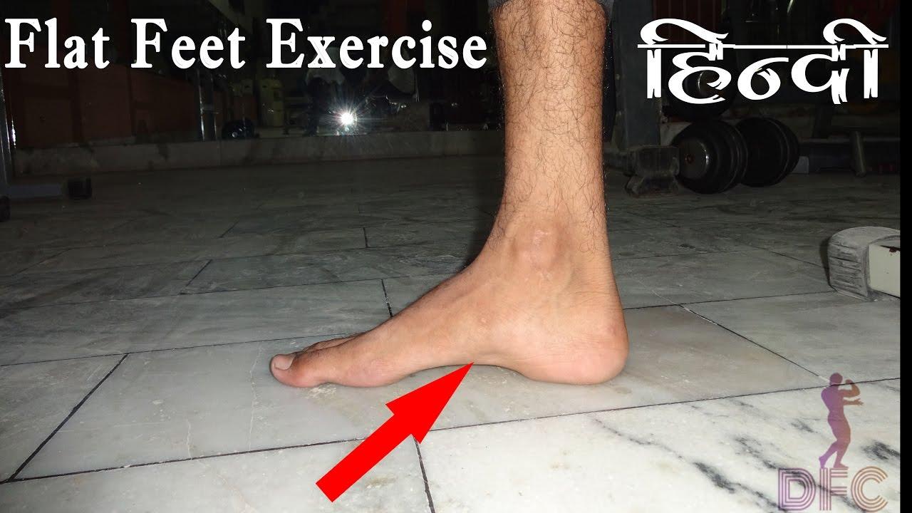 Flat Foot ठीक करने के लिए एक्सरसाइज़