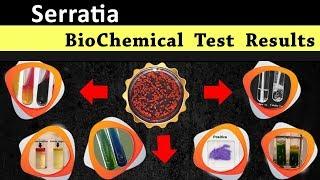 Serratia  Biochemical test results