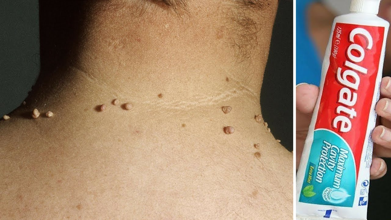 Remove Skin Tag In 1 Night Of Applying Toothpaste Remove Skin