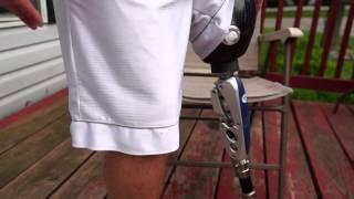 AmputeeOT: Wie Eine Oberhalb des Knies (AK) Beinprothese Funktioniert