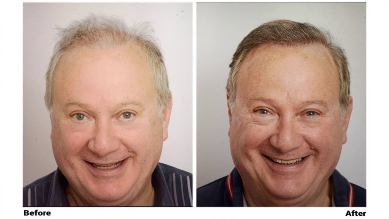 The Forhair Clinic : Hair Restoration Surgery