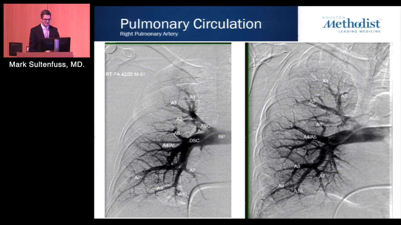 The Pulmonary Circulation: Anatomy and Physiology (Mark Sultenfuss, MD)