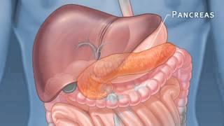 Pancreatic Auto Islet Transplantation with Total Pancreatectomy