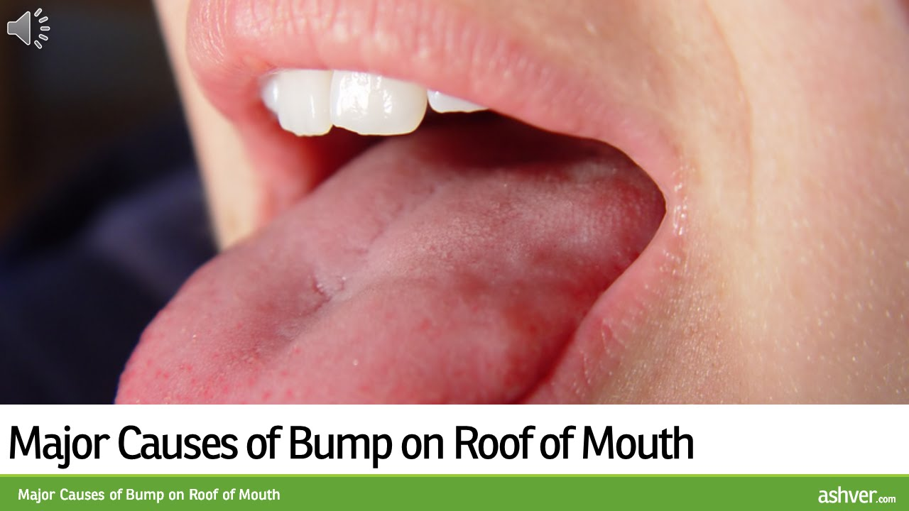 Major Causes of Bump on Roof of Mouth - YouTube