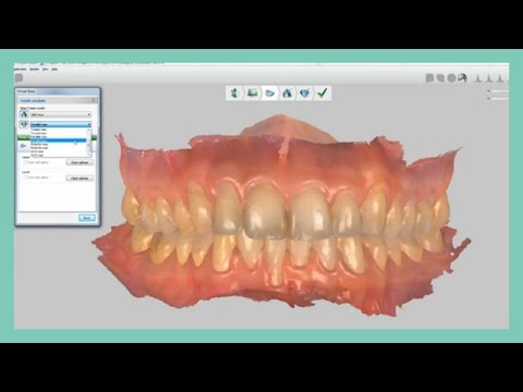 How to create the virtual base in Ortho Analyzer