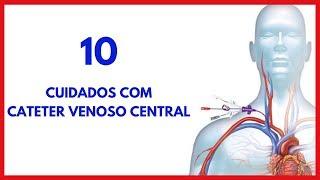 10 icd mau funcionamento cateter do vascular