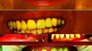 Имплантация зубов СПб