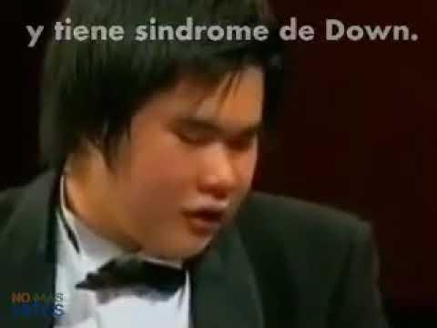 Día Universal del Síndrome de Down- Alto mensaje de inclusión