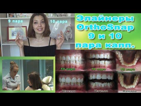 Капы для выравнивания зубов и исправления прикуса что это