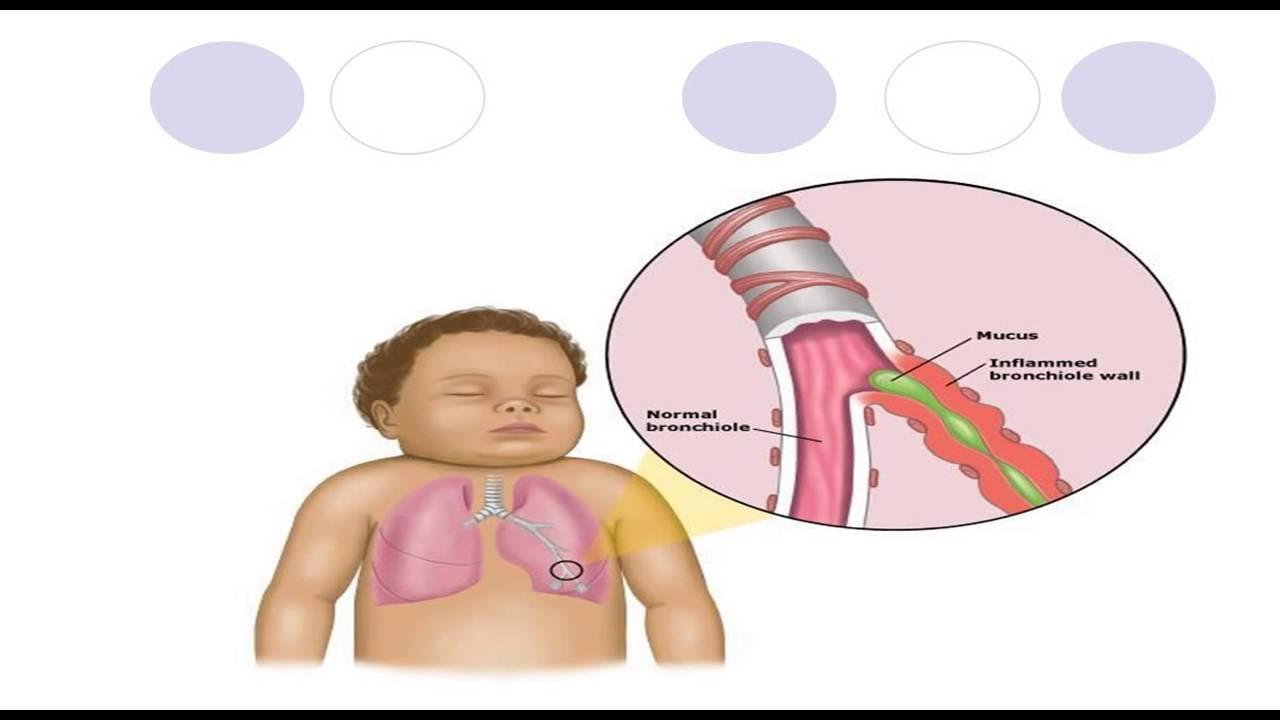 Sinh lý bệnh viêm tiêu phế quản / bài giảng sinh lý bệnh