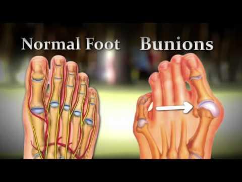 Bunions wiki