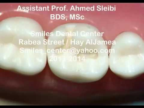 Cl I Cavity Upper 1st Molaramalgam Gv Black Dr Ahmed Sleibi