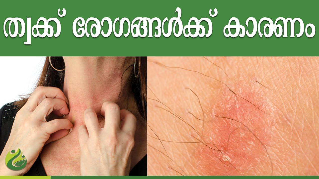 Beauty Tips In Malayalam Pdf