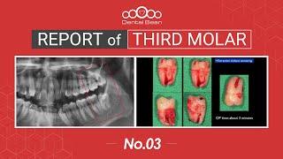 [ENG] Extraction of distoangular Lt. Mn third molar [#Dentalbean]