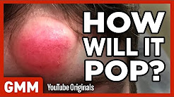hqdefault - Pimple Pop The Game