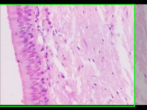 Histopathology Basics