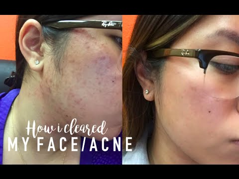 How i cleared up my face/acne |EPIDUO,MINOCYCLINE,SKINCARE ...
