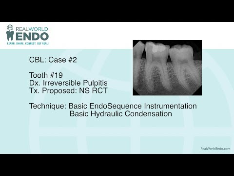 CBL #2: Basic Molar Root Canal Therapy #19 by RealWorldEndo