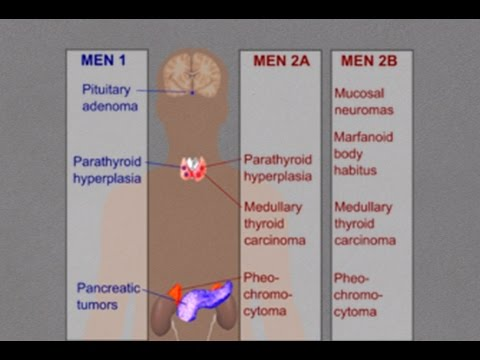 News Multiple Endocrine Neoplasia Syndrome Men I Ii Iii