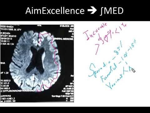 EEG , DWI MRI and CJD