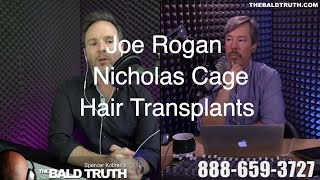 The Bald Truth-Friday July 6th, 2018-Joe Rogan, Nicolas Cage, Hair Transplant, SMP,