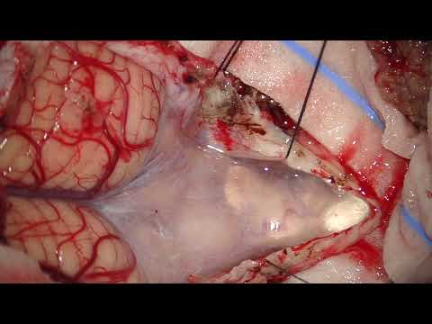 Telovelar Approach Microsurg Resection Of 4th Ventricular Subependymoma Arising From Rhomboid Fossa