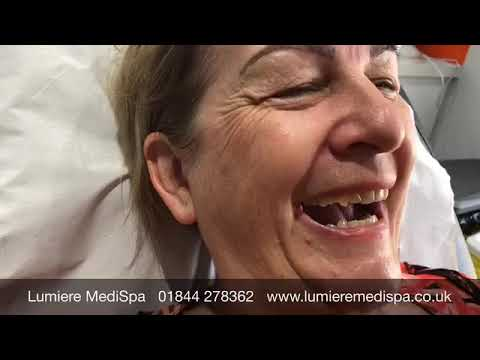 Teosyal Redensity 1 Dermal Filler Treatment