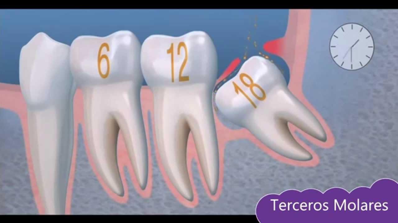 Tema 5: Cirugía Oral: Terceros Molares