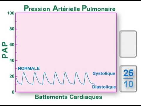 pression artérielle pulmonaire - YouTube