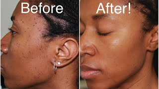 How To Get Rid of Moles and Dark Spots Fast