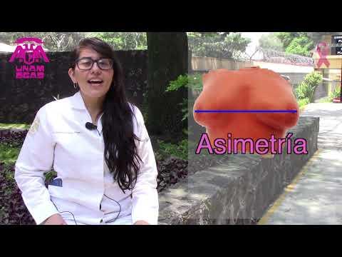 ¿Qué es el Cáncer de mama? - UNAM Global
