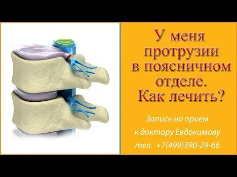 протрузии в поясничном отделе позвоночника. ответ врача остеопата