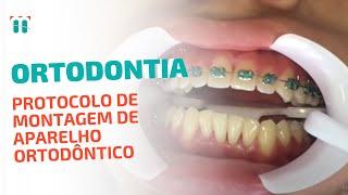 Video Protocolo de Montagem do Aparelho - Dr. Marden Bastos download MP3, 3GP, MP4, WEBM, AVI, FLV Oktober 2017