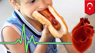 Brugada syndrome  Kid's heart stops beating after eating hot dog   TomoNews