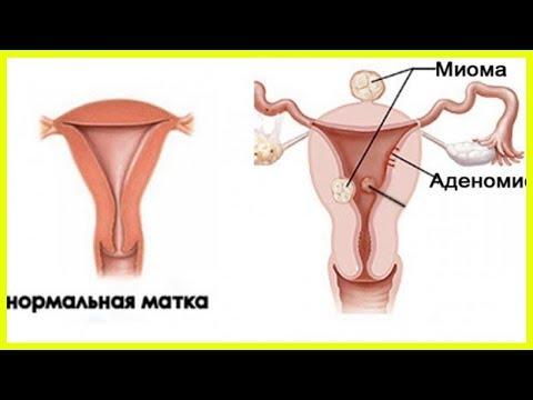 Миома матки — размеры для операции...