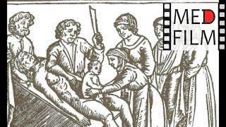Корпоральное кесарево сечение © Corporeal cesarean section