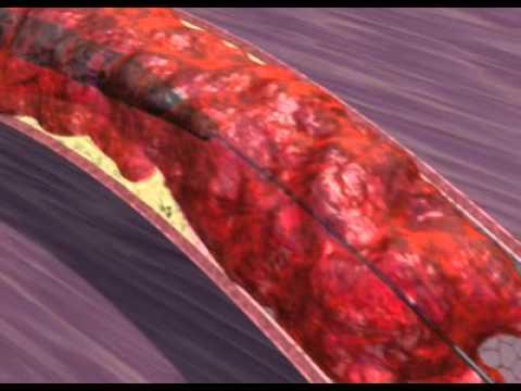 Treatment of Myocardial Infarction