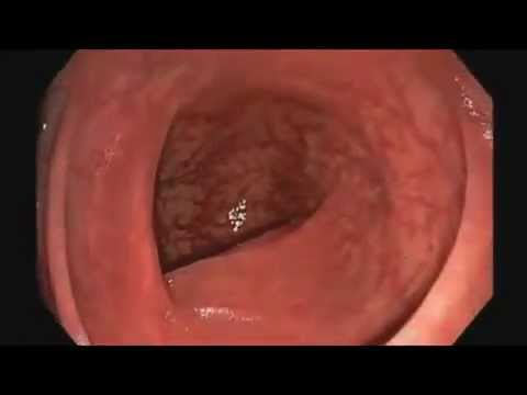 Colonoscopy - Journey Through a Healthy Colon