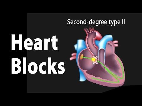Heart Blocks, Anatomy and ECG Reading, Animation.