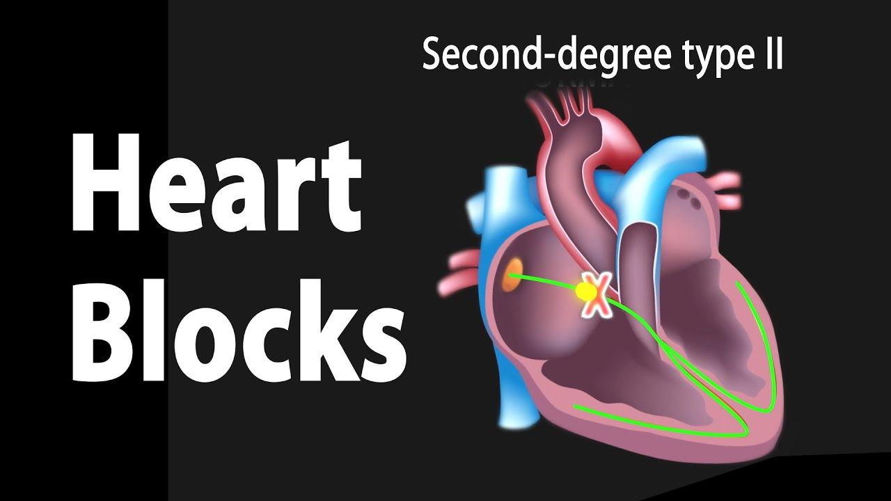 Heart Blocks, Anatomy and ECG Reading, Animation. - YouTube