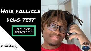 CDL HAIR FOLLICLE DRUG TEST ( WHAT I DID TO PREPARE AND PASS A HAIR DRUG TEST WITH DREADLOCKS)