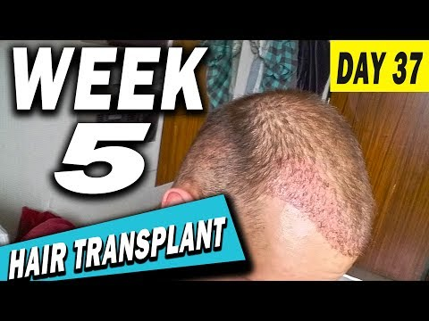 FUE Hair Transplant 5 Weeks (post op) Istanbul, Turkey