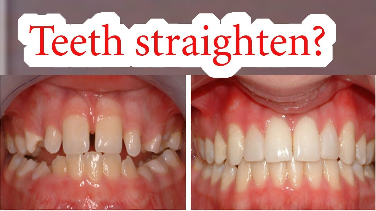 How Long Do Braces Take To Straighten Your Teeth - TeethWalls