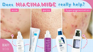 Niacinamide + Panthenol for Reducing Large Pores, Hyperpigmenation, Acne & More!