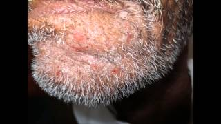 Repeated infection of beard area?.