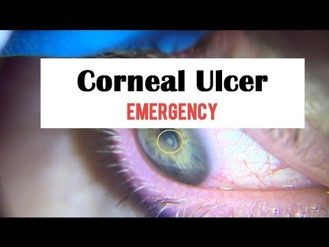 Corneal Ulcer Emergency